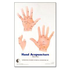 Hand Chart H-34
